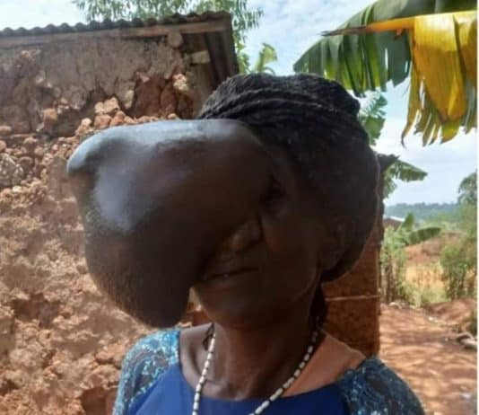 Beatrice Makokha at her home; before the surgery.